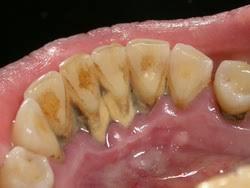 Лечение зубов и десен со скидкой до 50%