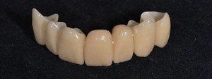 Подробно о временных коронках на зубы