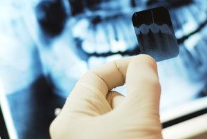 Рентгенография зубов в Оренбурге