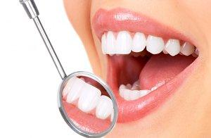 Удаление зубного камня в Вологде