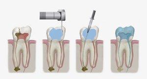 Эндодонтическое лечение зубов, что это такое?