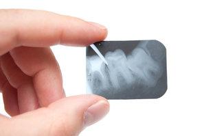 Где можно сделать рентген зуба в Вологде?