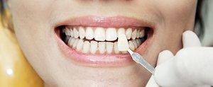 Виды виниров на зубы, плюсы и минусы