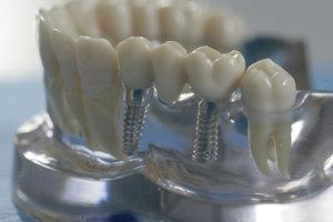 Качественные импланты зубов