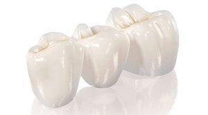 Зубы из безметалловой керамики