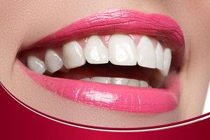Как натуральные зубы: безметалловые керамические коронки на основе диоксида циркония