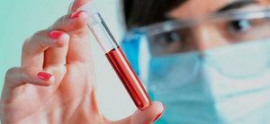 Правила подготовки пациентов к лабораторным исследованиям крови в Оренбурге в медицинском центре «Диметра»