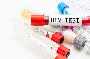Сдать анализ на ВИЧ. Доступные цены!