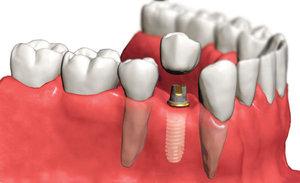 Импланты зубов из качественных материалов