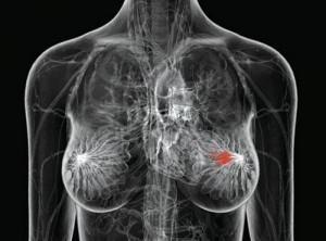 Программа раннего выявления рака груди у женщин