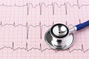 ЭКГ сердца. Будьте в курсе своего здоровья!