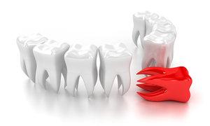 Запись на удаление зуба