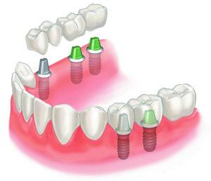 Качественное протезирование зубов в Оренбурге