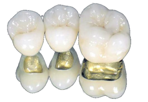 Сделать зубы из металлокерамики