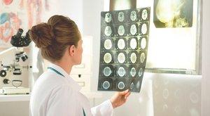 Прием квалифицированного невролога