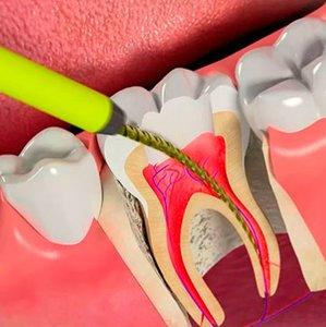 Удаление нерва зуба быстро и безболезненно!