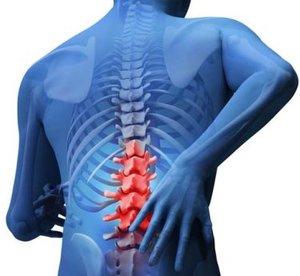 Эффективное лечение спины в Туле