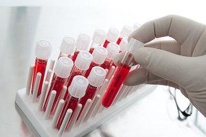 Сдать биохимический анализ крови без записи