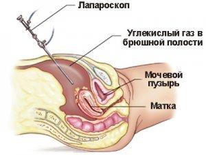 Лапароскопия в Вологде