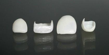 протезирование