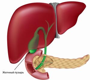 Лечение желчного пузыря в Вологде
