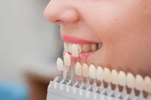Установка люминиров на зубы качественно и недорого!