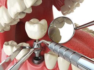 Имплантация зубов - отличный способ восстановить зубной ряд!