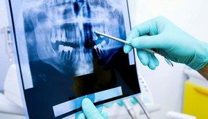 Рентгенологическое исследование зубов в Череповце