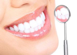 Записаться на процедуру отбеливания зубов в Вологде