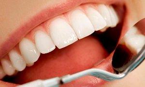 Качественные керамические виниры на зубы