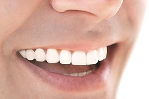 Протезирование зубов в Орске