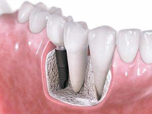 Установка импланта зубов в Вологде