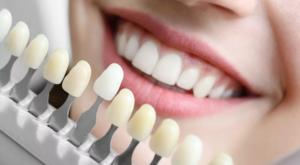 Реставрация зубов в Вологде