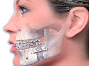 Специалист в области челюстно-лицевой хирургии в стоматологии Эстетика