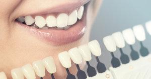 Изготовление и установка виниров на зубы в Вологде