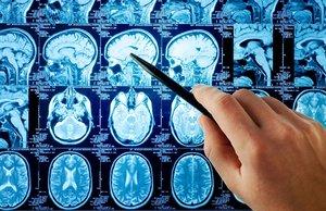 МРТ головного мозга на точном оборудовании