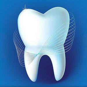 Зубной камень - диагностика и лечение