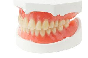 Изготовление и установка зубных протезов в Вологде