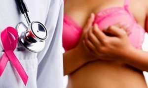 Онколог-маммолог в Вологде