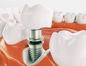 Где установить импланты зубов в Вологде?