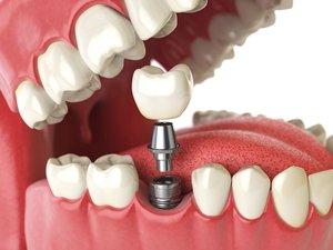 Где сделать имплантацию зубов в Вологде?