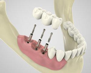 Имплантация зубов в Вологде