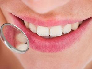 Удаление зубного камня в стоматологии