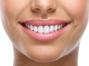 Зубной камень удаляем безопасно. Записывайтесь на процедуру на сайте!