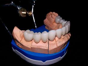 Безметалловая керамика на передние зубы