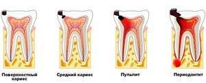 Периодонтит – симптомы и лечение
