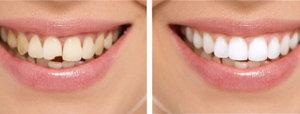 Качественная реставрация зубов в Череповце