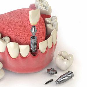 Имплантация передних зубов в Вологде