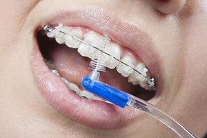 Как чистить зубы с брекетами?