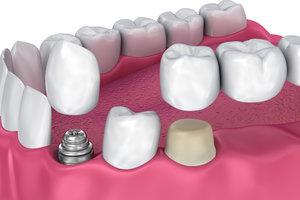 Установка металлокерамической коронки зубов в Вологде